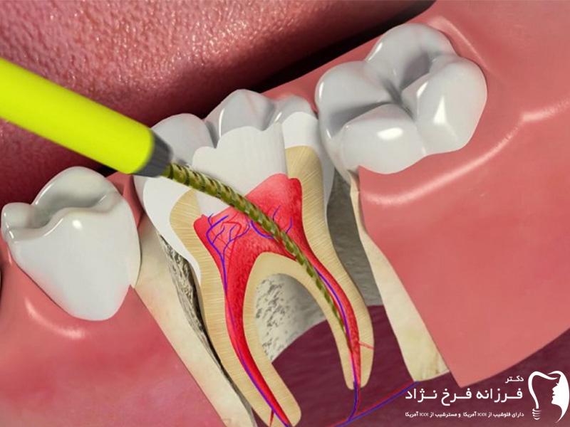 ریشه دندان - صفحه اصلی
