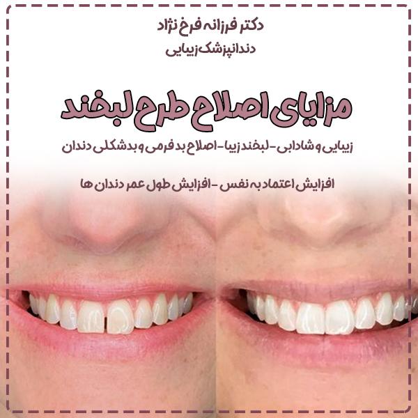 %D9%81%D8%B1%D8%AE %D9%86%DA%98%D8%A7%D8%AF - برای یک عمرتان لبخند زیبا بسازید