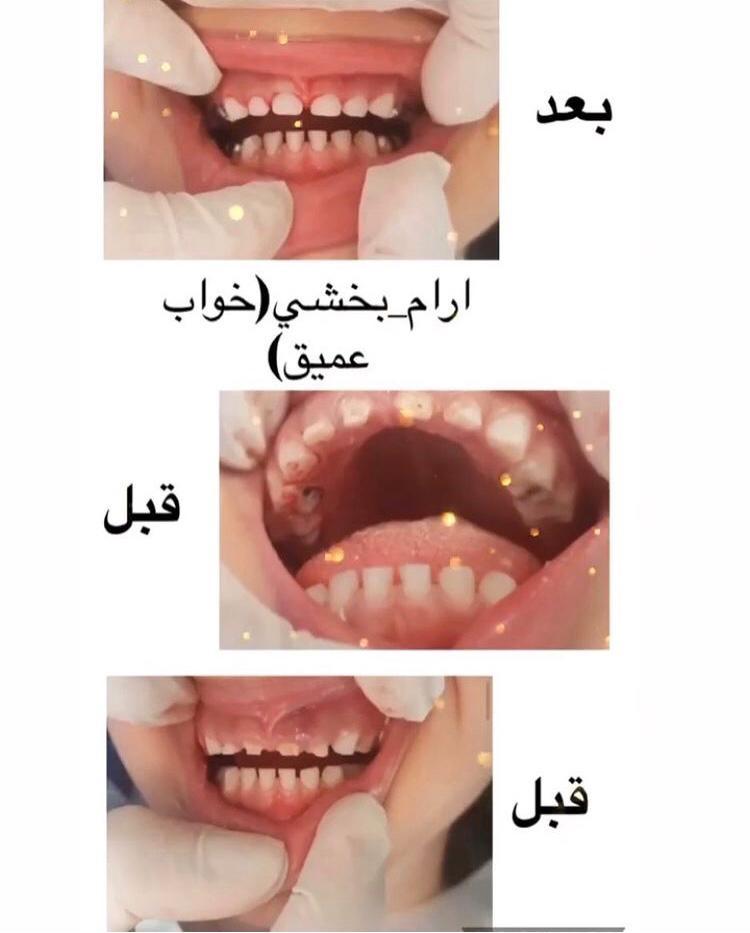 2565939f 0032 4750 98d0 a5b2c02c8487 - بهترین دندانپزشک اطفال