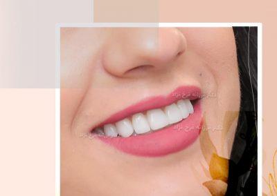 نمونه کار دندان اصلاح طرح لبخند