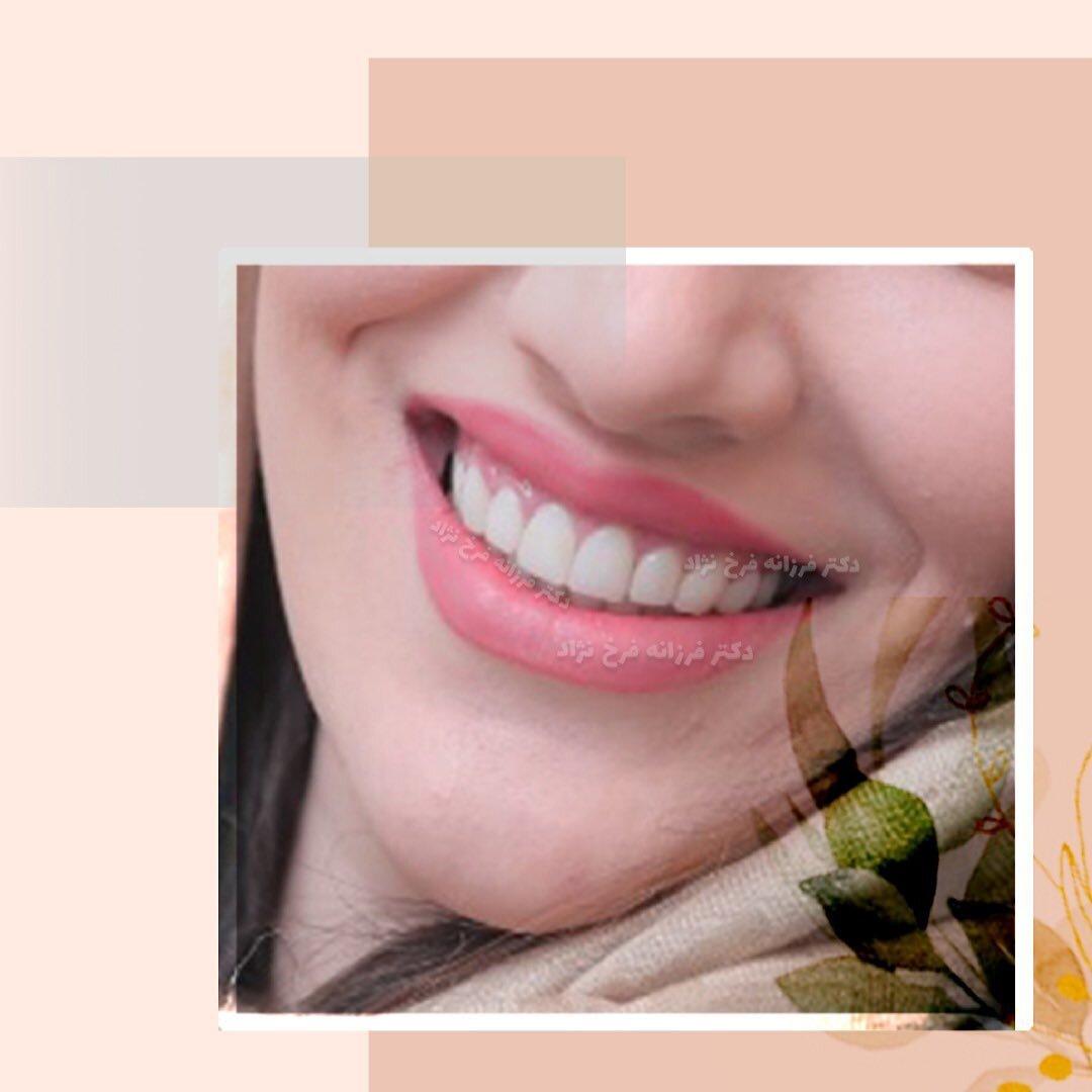 نمونه کار زیبایی دندان توسط دکتر فرخ نژاد
