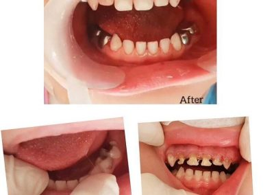 بازسازی دندان اطفال